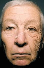 紫外線による皮膚のダメージ
