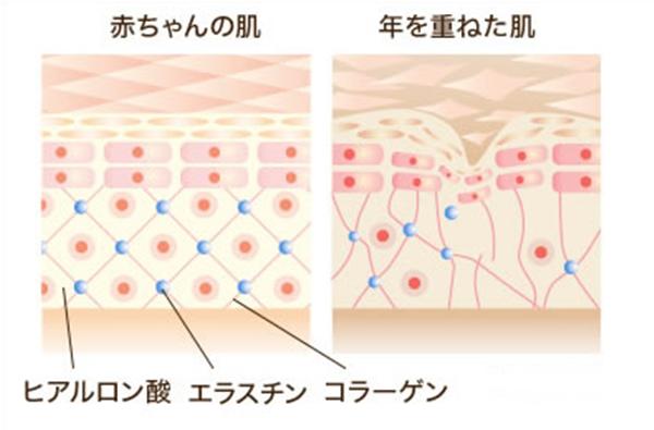 コラーゲンが減少した肌