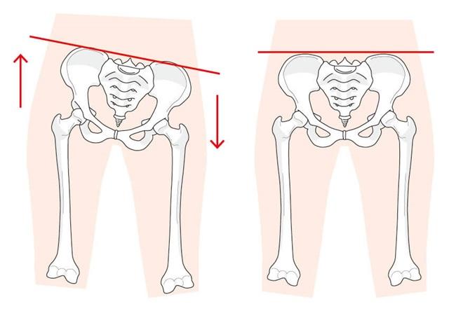 骨盤の歪み